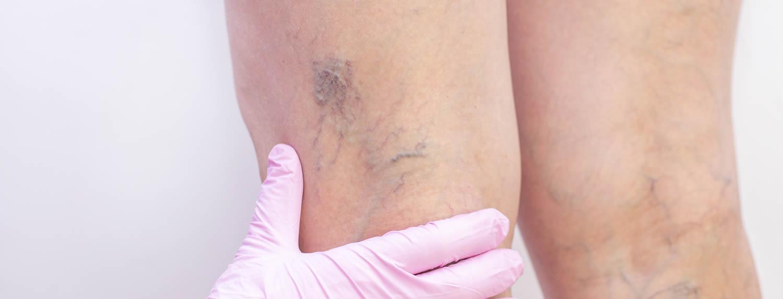 Escleroterapia de varices en miembros inferiores